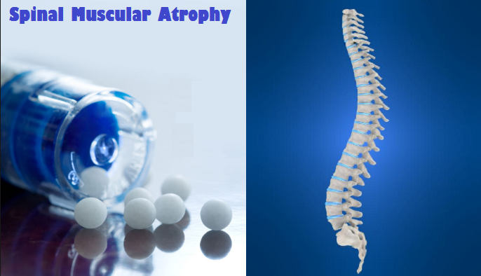 spinal-muscular-atrophy