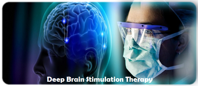 deep-brain-stimulation-therapyy