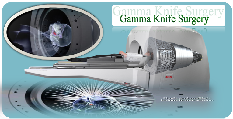 gamma-knife-surgery-in-india
