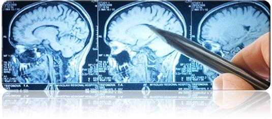 Types of Neurosurgery