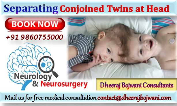 neuro twins head surgery