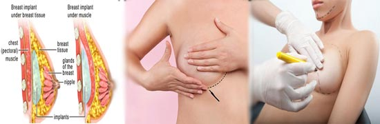 Breast Implant surgeons in Hyderabad