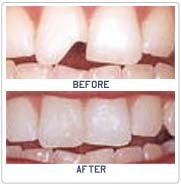 Tooth Contouring and Reshaping Surgery in India
