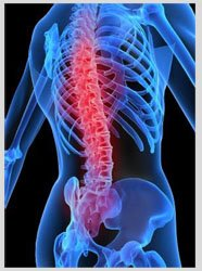 What are Benefits of Laser Spine Surgery