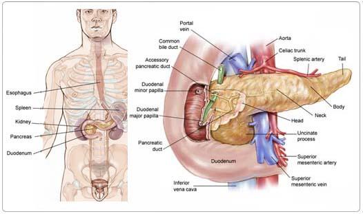 ovarian cancer symptoms stage 1