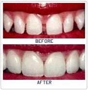 Dental Bonding India,Cost Dental Bonding ,Dental Bonding Mumbai ...