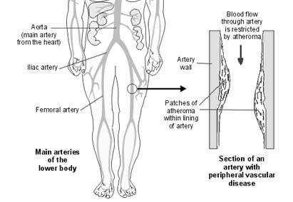 femoral artery blood flow - 479×361