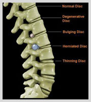 laser spine surgery India, cost laser spine surgery India