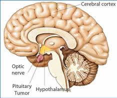pituitary tumour Surgery India