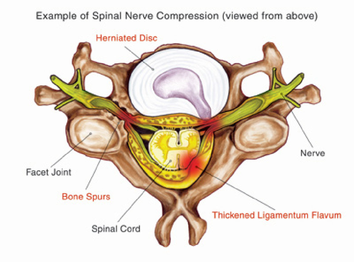 reasonable price spine treatment,cervical spine treatment