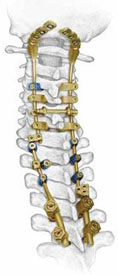spinal fusion surgery India, cost spinal fusion surgery India