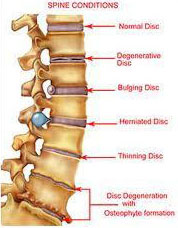 low cost spine surgery India, spine surgery benefits India
